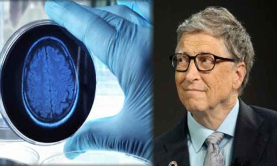 bill gates alzheimer